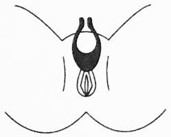 Dit is een afbeelding van de satisfyer multifun way 11